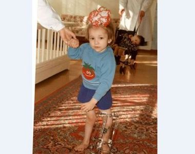 La 9 ani, mama ei a decis sa ii taie picioarele. Ce s-a intamplat 15 ani mai tarziu a...
