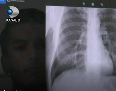 O aplicatie online citeste gratuit radiografii si pune diagnostice. Este inventia unor...