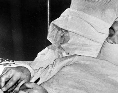 El este doctorul care s-a operat singur de apendicita! A facut-o fara anestezie si fara...