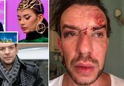 Creatorul de moda Stephan Pelger, batut crunt si jefuit la Cannes! Imagini terifiante