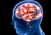 Cum să previi boala care l-a ucis pe Ilie Balaci! Primele semne ale unui accident vascular cerebral