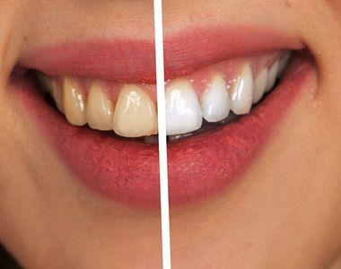 Idei strălucitoare pentru dinţi galbeni. Ce trebuie să faci pentru o dantură frumoasă