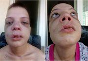 Mutilata pe viata! Imagini sfasietoate cu o tanara de 20 de ani, ajunsa pe mainile proxenetilor