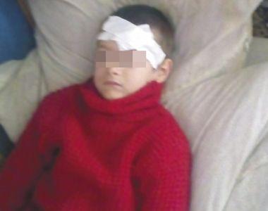 Cumplit! Si-a mutilat copilul cu fierul de calcat fiindca nu ii spune mama - Medicii...