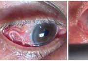 Avea o creatură ciudată în ochi! Medicii au fost şocaţi când au văzut ce scot din ochiul unui bărbat!