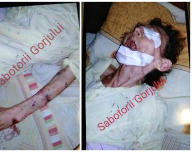 Imaginile groazei într-un azil de bătrâni din Gorj! O femeie de 77 de ani, în stare...