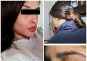 Dezvăluiri cutremurătoare în cazul fetei agresată de iubit în Ploieşti! Tânăra a spus cum a reuşit să fugă
