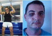 """Un medic din Iași a fost bătut crunt de un boxer, dar l-a iertat pe agresor! I-a cerut să facă două fapte bune pentru a-l scăpa de pedeapsă! """"S-a ținut de cuvânt și a făcut două gesturi superbe!"""""""