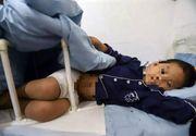 O mamă vitregă îi ardea organele genitale copilului de 7 ani.  Detalii șocante