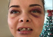 """Femeie desfigurată de iubit după ce și-a schimbat poza de pe Facebook: """"Unul dintre dinți mi-a ajuns într-o nară"""""""