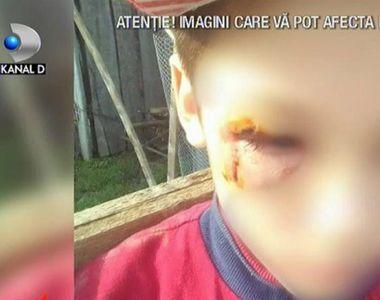 Copilul din Vaslui bătut cu bestialitate de mamă are răni grave la nivelul capului!  Ce...