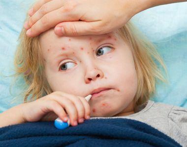 Este cea mai gravă epidemie de rujeolă din ultimii 10 ani! Organizația Mondială a...