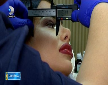 Romania, in topul tarilor cu cele mai multe operatii estetice! Peste 77.000 de...