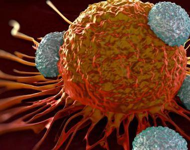 Cele mai comune 5 alimente care provoacă apariția cancerului
