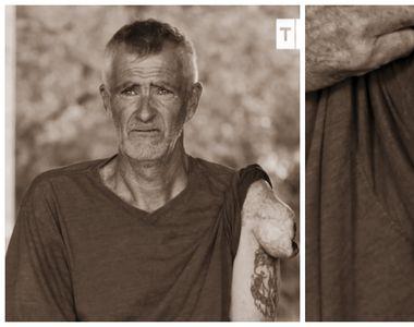 Leonard a trăit 10 ani cu o anomalie pe umăr! Ce l-a făcut să arate așa? Medicii au...