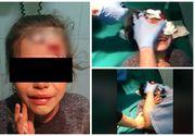 O copilă din Călărași, mutilată de patroana unui magazin! I-a spart un borcan cu bulion în cap pentru că a vrut o pungă de pufuleți! IMAGINI nerecomandate minorilor!