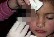 O mamă denaturată și-a mutilat fetița de doar 8 ani! Motivul halucinant pentru care îi injecta botox în față