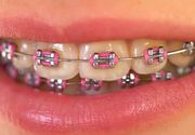 VIDEO | Aparatul dentar a devenit OBIECT ESTETIC! E deja o fiță să te afișezi la evenimente cu așa ceva