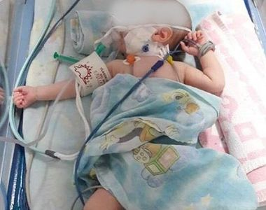 A murit bebelușul din Sebeș care s-a născut cu o malformație gravă