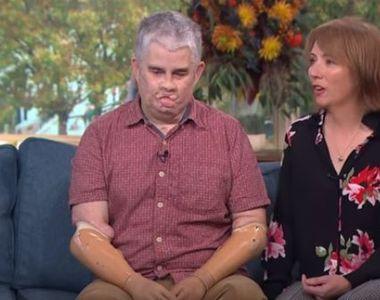 S-a dus la dentist, iar viața lui s-a schimbat radical! Când s-a trezit din comă toate...