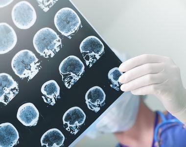 Care sunt cauzele epilepsiei și cum se tratează această afecțiune?