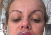 A fost la un pas de tragedie, după ce și-a injectat buzele. Ce a descoperit femeia la scurt timp de la intervenție