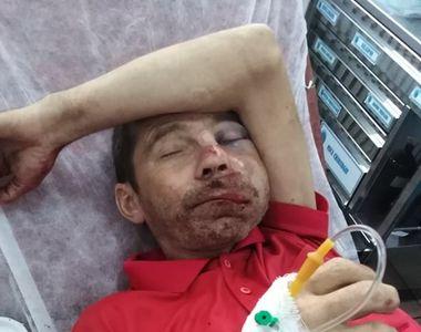 Bărbat din Dâmboviţa, desfigurat de doi copii de 13 ani foarte periculoşi