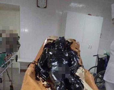 Un bărbat a căzut într-o baltă cu smoală. Medicii s-au chinuit ore bune să-i radă...