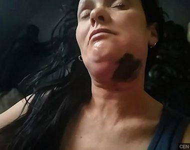 Credea că are a carie, însă medicul stomatolog i-a dat vestea șoc! Aceasta femeie avea...