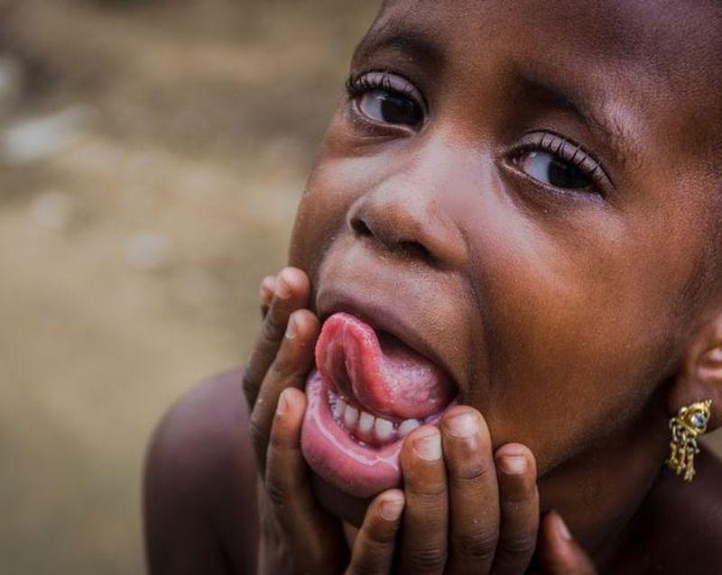 Semnal de alarmă pentru părinți. Unul din trei copii din lume este malnutrit sau supraponderal