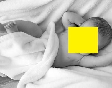 Bebelușul fără chip. Cazul medical care a șocat lumea