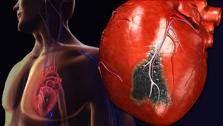 Infarct miocardic - Wikipedia