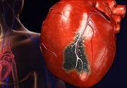 Cum să faci față unui atac de cord? Pașii esențiali care îți pot salva viața