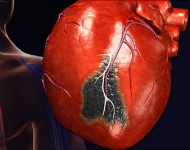 Cum să faci față unui atac de cord? Pași esențiali care îți pot salva viața