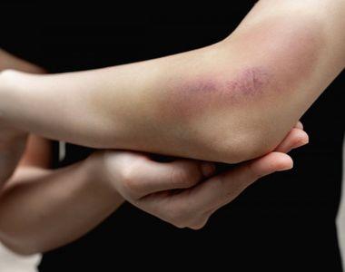O elevă de liceu se teme să mai meargă la școală după ce a fost bătută de o colegă care...