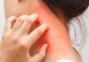 Ce este dermatomiozita, boala cruntă de care suferă Sorina Pintea?