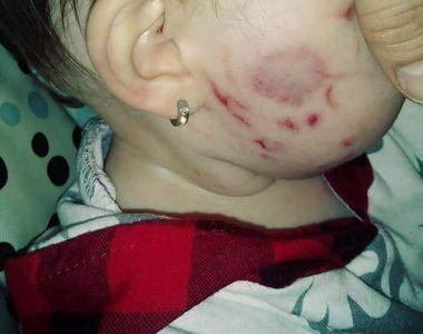 Efectele bullying-ului distruge de la vârste fragede. O fetiță a fost atacată la grădiniță