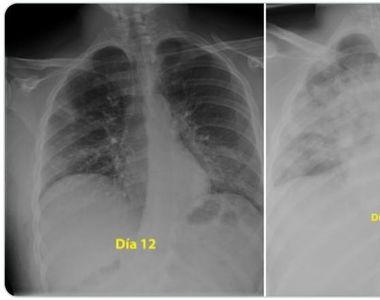 Cum a distrus coronavirusul în trei zile plămânii unui tânăr de 28 de ani