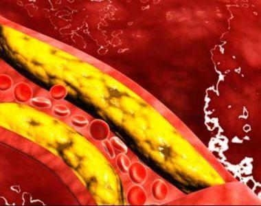 Colesterol. Cum îți poți curăța vasele de sânge de colesterol în mod natural. Ai nevoie...