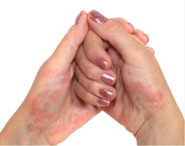 De ce apare, de fapt, psoriazisul? Adevărul despre această afecţiuni