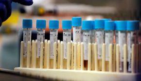 Coronavirus România 2 iulie 2020. Numărul de cazuri continuă să crească