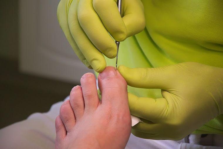 Onicomicoza: cum tratezi infecția fungică a unghiei