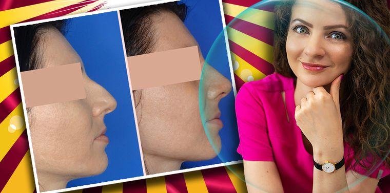 Rinoplastia, operația estetică ce modifică forma și mărimea nasului. Ce preţ are această intervenţie complexă?