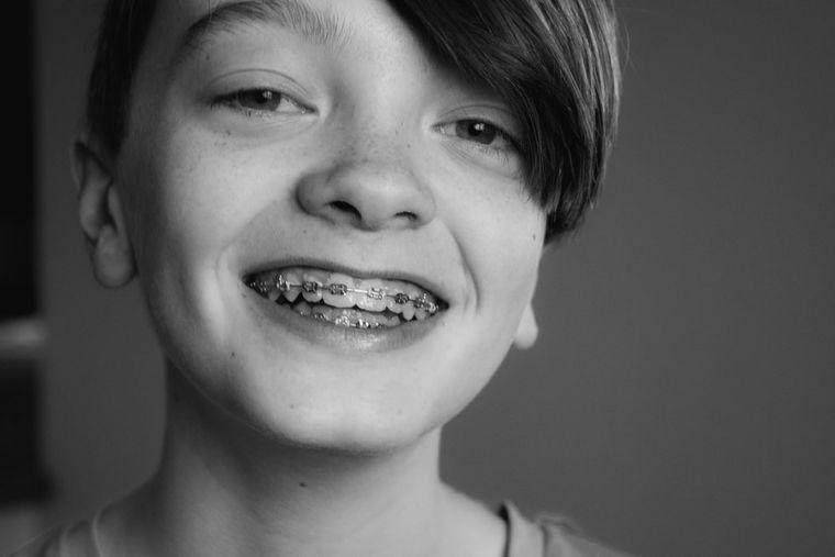 Copilul tău are nevoie de aparat dentar? Iată ce trebuie să știi despre acest tratament!