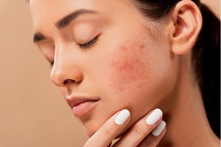 5 sfaturi pentru a trata și preveni o erupție acneică