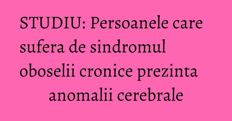 STUDIU: Persoanele care sufera de sindromul oboselii cronice prezinta anomalii cerebrale