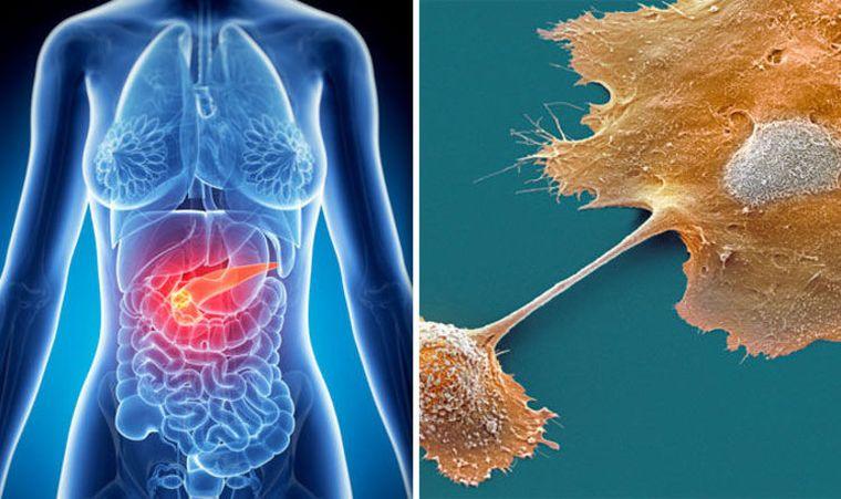 Cancerul pancreatic: semnele timpurii care iti pot salva viata
