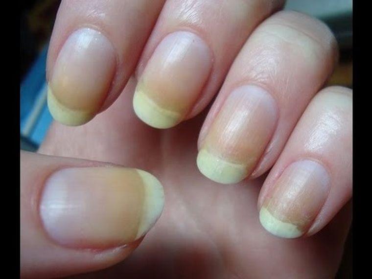 Ți se îngălbenesc unghiile? Care sunt cauzele aspectului neplăcut