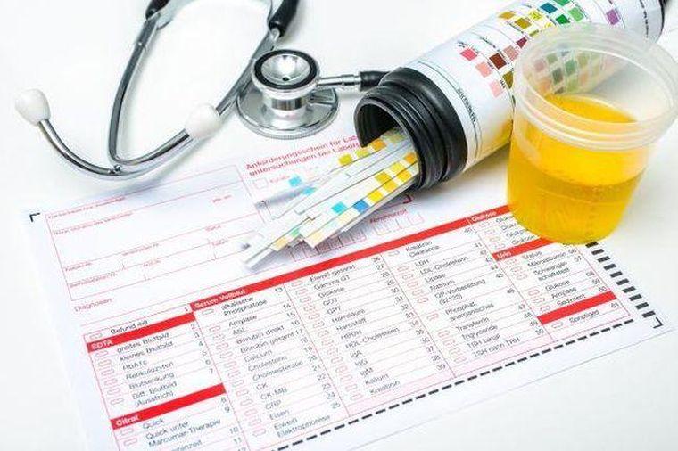 Analiza de urină în timpul sarcinii: cum se interpretează rezultatele
