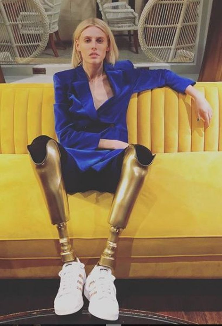 Un model a rămas fără picioare, din cauza unui tampon!